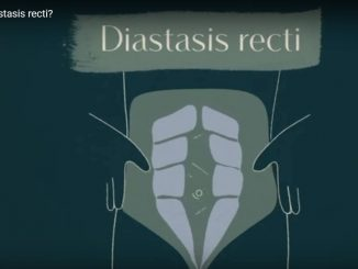 Diastasis Recti Repair