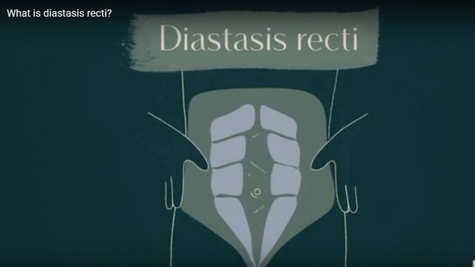 Diastasis Recti Repair