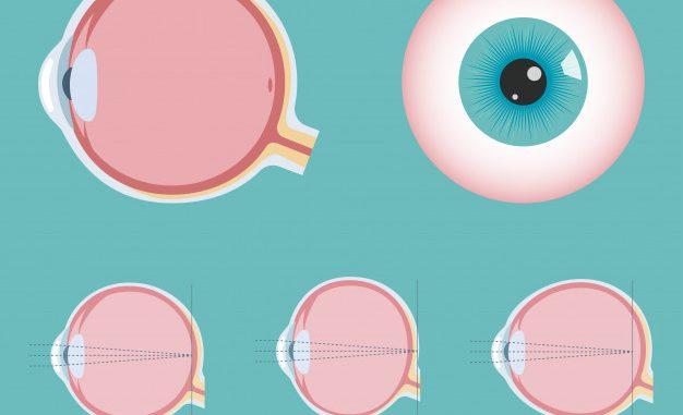 Eye Disorder